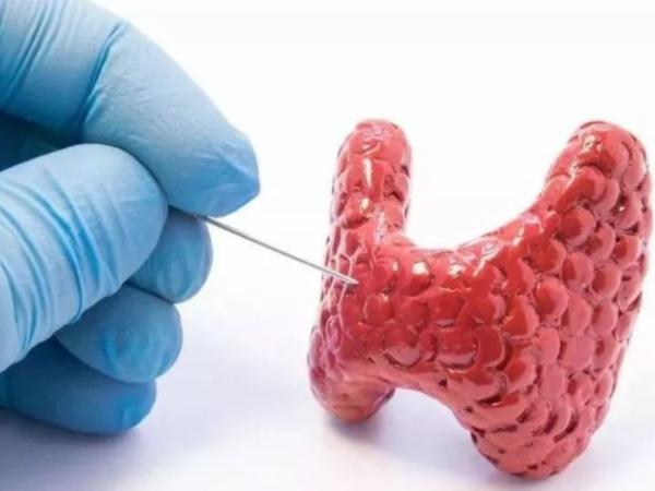 甲状腺是怎么回事?健康生活这样做